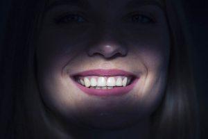 blanqueamiento de los dientes img
